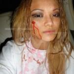 Tila Tequila beaten at a concert photos 1 150x150