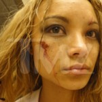 Tila Tequila beaten at a concert photos 2 150x150