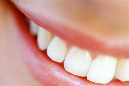 risparmiare dal dentista