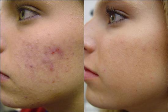 Needling Acne Scars