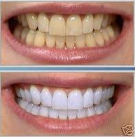 Denti bianchi usando una banana