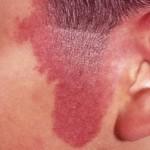 Temporal Birthmark 150x150