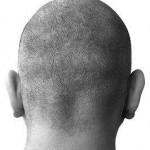 castor oil help hair loss 800x800 150x150