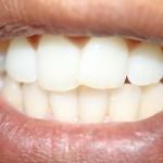 remove tobacco stains teeth 800x800 150x150
