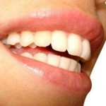 crest white strips side effects 800x800 150x150