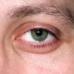 epsom okay use swollen eyes  800x800 150x150