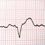 valerian root pills cardiac problems 800x800 150x150