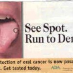 tongue cancer 150x150