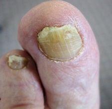 Non costoso significa da un fungo di unghie che sopportano un mikospor il prezzo