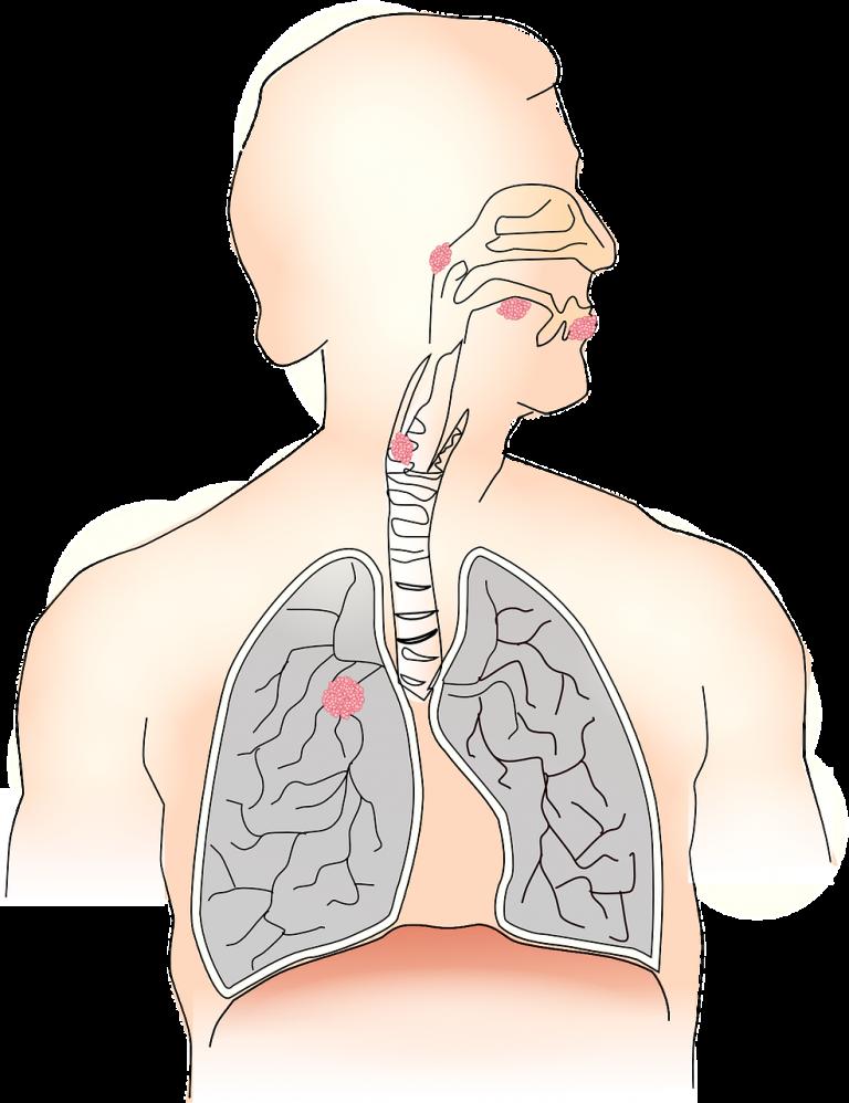 cancro alla lingua
