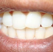 article page main ehow images a04 jr r4 whiten one s teeth 800x800