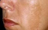 Lo srub per candeggiare di pelle di un corpo