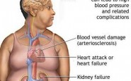 article new ehow images a04 op g6 heart disease caused obesity 800x800 185x115