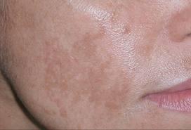 Le procedure da pigmentary notano risposte