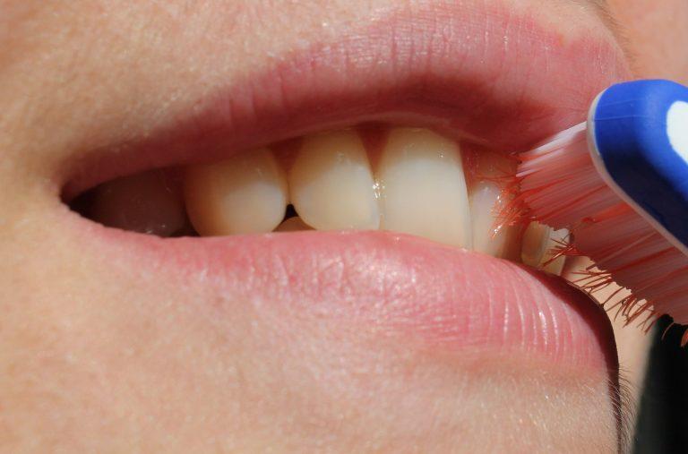 Rimozione del tartaro dai denti