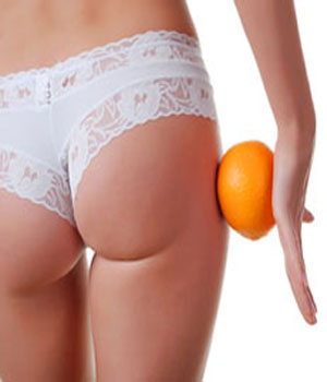 Cellulite? Dipende da come cucini