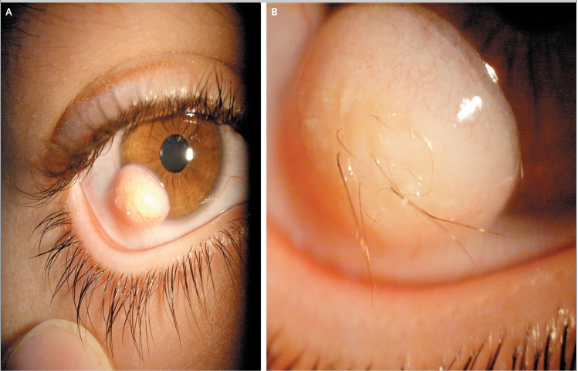 tumore nel occhio