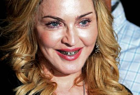 madonna denti