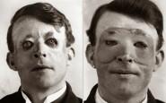 Walter Yeo, uno dei primi a sottoporsi  chirurgia plastica ed a trapianto di pelle, 1917
