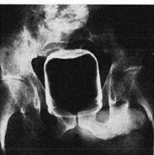 peanut-butter-jar-rectum