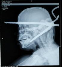 Uomo viene impalato alla testa da una pinza infuocata1