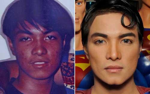 plastic-surgery-superman