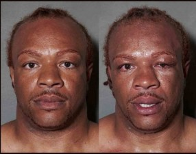 Howard-Schatz-Before-and-After-5