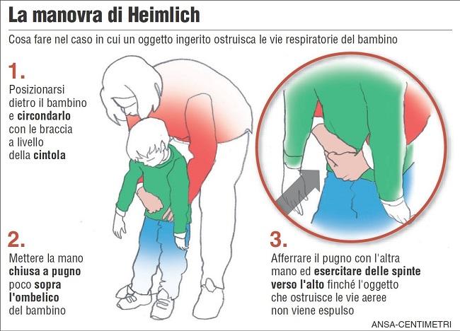 manovra-di-Heimlich