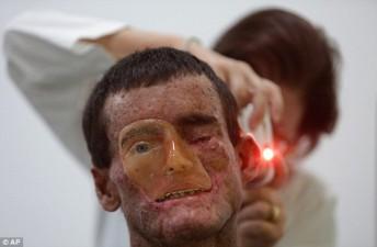 xeroderma-pigmentoso