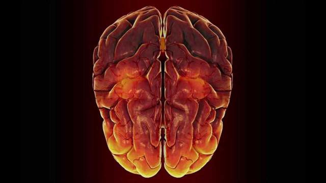 cervello-scoreggia