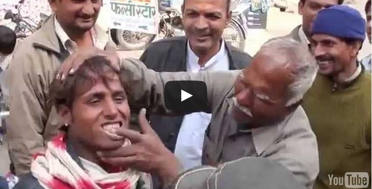 sbiancamento denti India