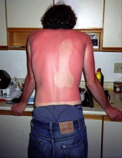 sunburn-pictures-dumpaday-20jpg-492x640