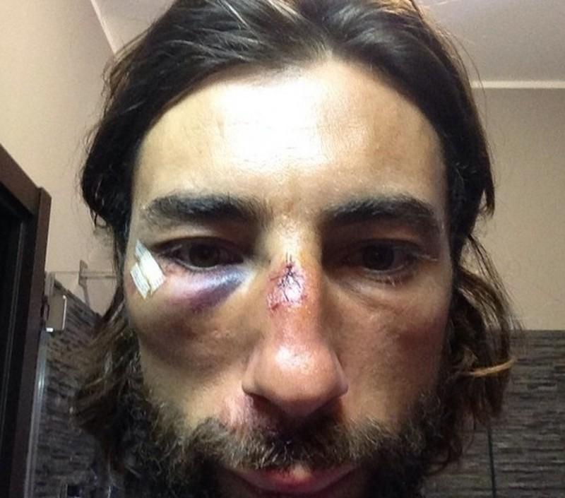 vittorio brumotti punti dopo incidente in bici
