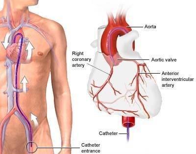 coronarografia esempio