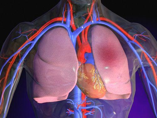 embolia-polmonare-sintomi-terapie