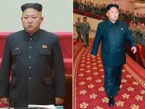 Kim-Jong-Un-operation-300x225