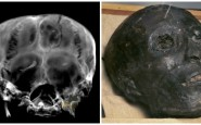 mummia-radiografata