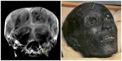 mummia radiografata
