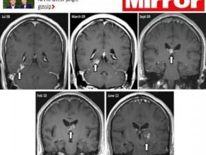 Uomo vive quattro anni con una tenia nella testa