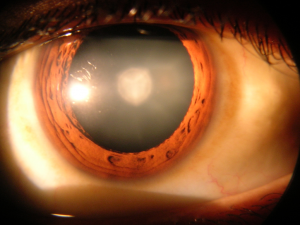 occhio-cataratta-300x225