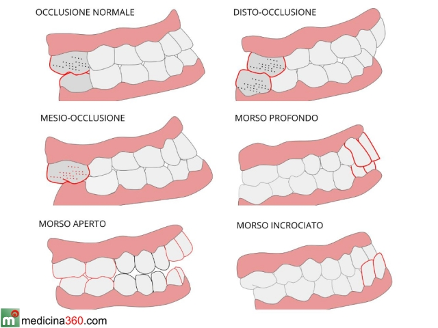 Malocclusione dentale cause