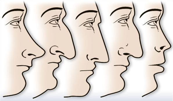 forma del naso