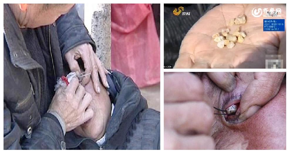 Piange lacrime di pietra: cura introvabile