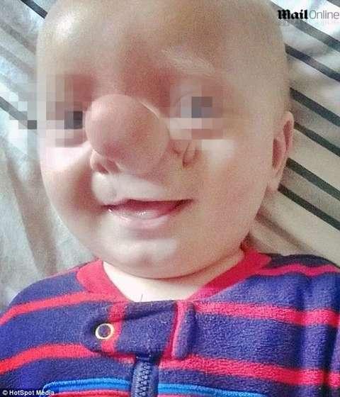 Ollie: il bambino Pinocchio, il cervello gli cresce dentro il naso