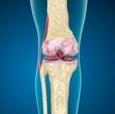 Quali sono i sintomi osteoporosi