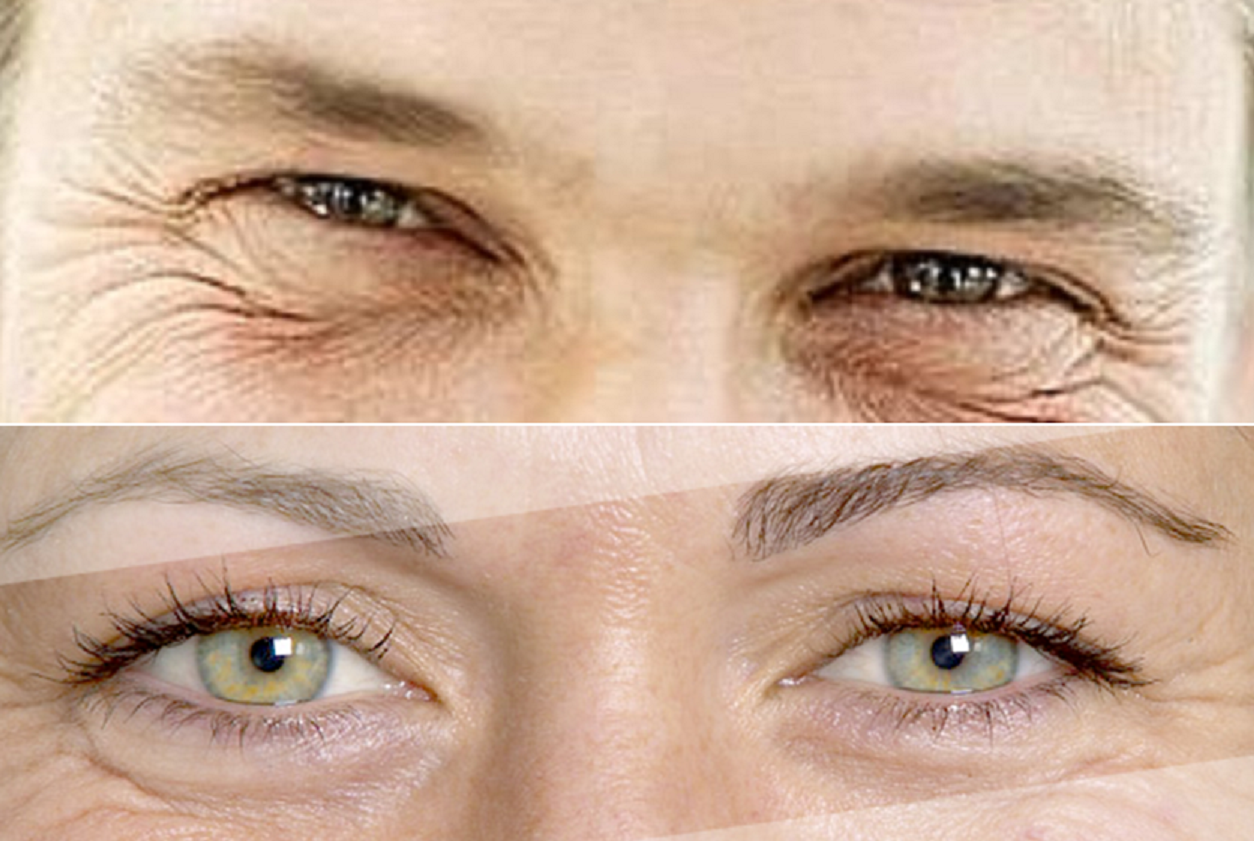 Qual è la differenza tra rughe occhi donna e uomo