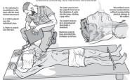 Che cos'è la pratica del Waterboarding?