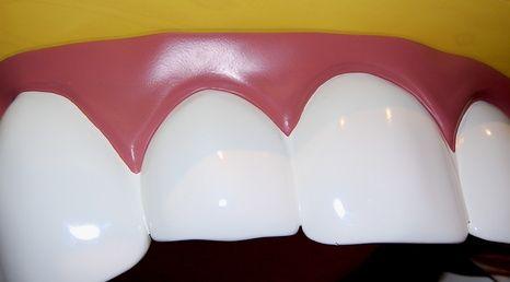 Come sbiancare i denti con acqua ossigenata