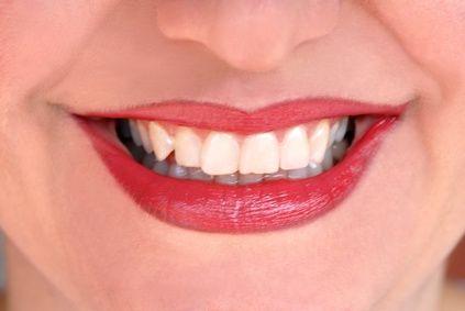 Come liberarsi di un'infezione ai denti