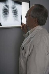 Segni dell'Osteoporosi